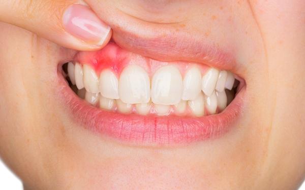 Zahnarzt in St.Gallen Parodontitis-Behandlung